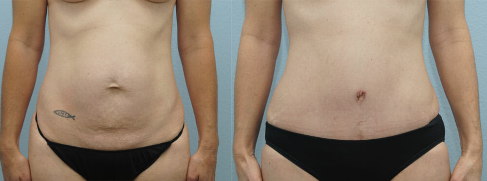 TUMMY TUCK (ABDOMINOPLASTY) PATIENT 16