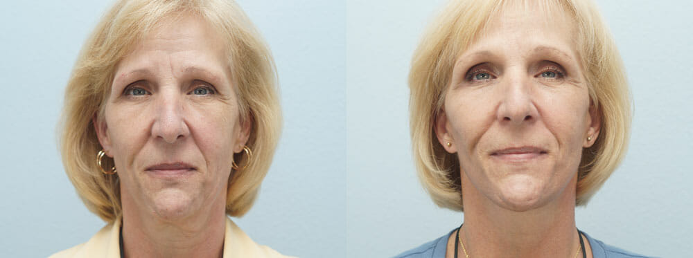 FACELIFT | NECK LIFT PATIENT 3