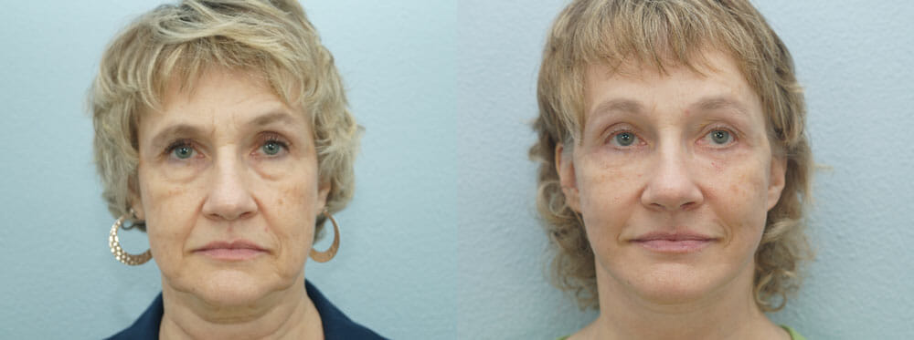 FACELIFT | NECK LIFT PATIENT 4