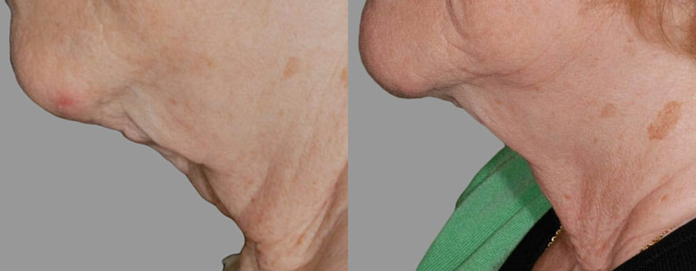 SKIN TIGHTENING + WRINKLE REDUCTION PATIENT 29