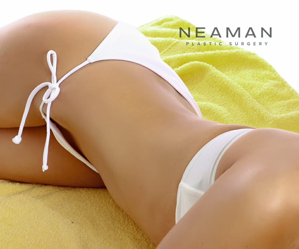 Removing Stretch Marks With Laser Technology