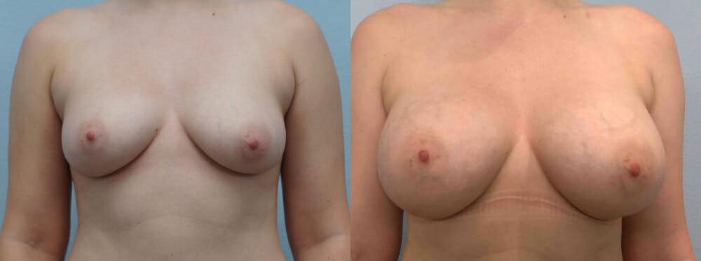 BREAST AUGMENTATION PATIENT 59