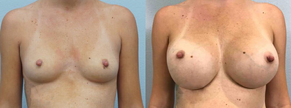 BREAST AUGMENTATION PATIENT 62