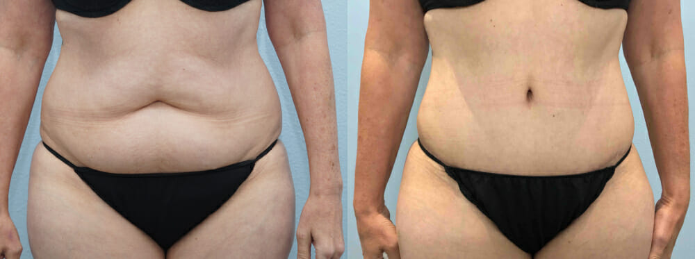 TUMMY TUCK (ABDOMINOPLASTY) PATIENT 29