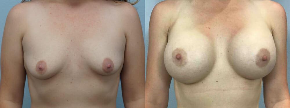 BREAST AUGMENTATION PATIENT 61