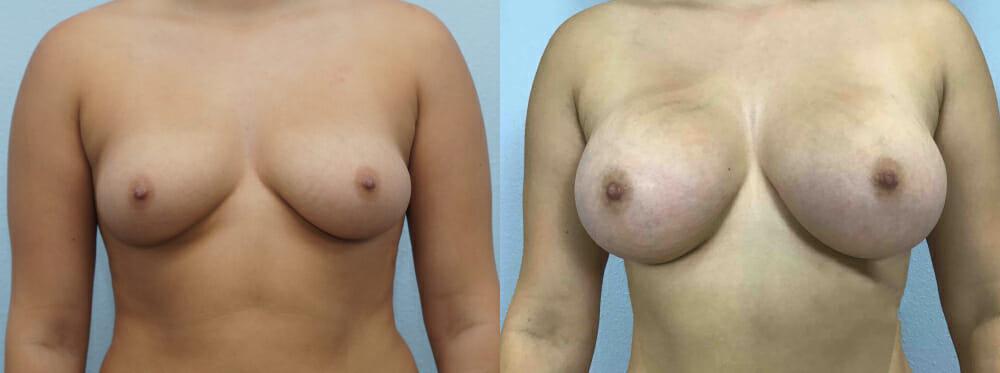 BREAST AUGMENTATION PATIENT 60