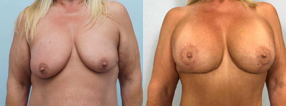 BREAST LIFT WITH IMPLANTS PATIENT 29
