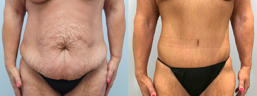 TUMMY TUCK (ABDOMINOPLASTY) PATIENT 30