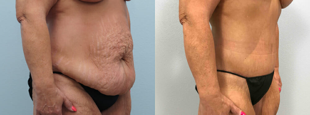 TUMMY TUCK (ABDOMINOPLASTY) PATIENT 30 right angle