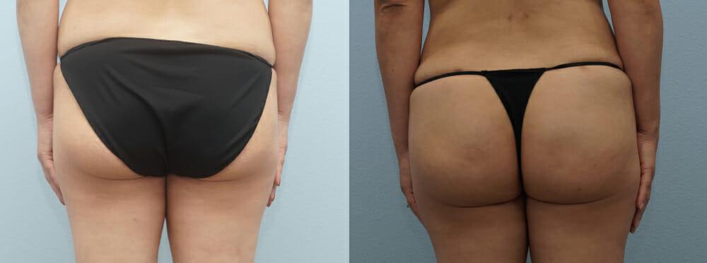 Brazilian Butt Lift Patient 6