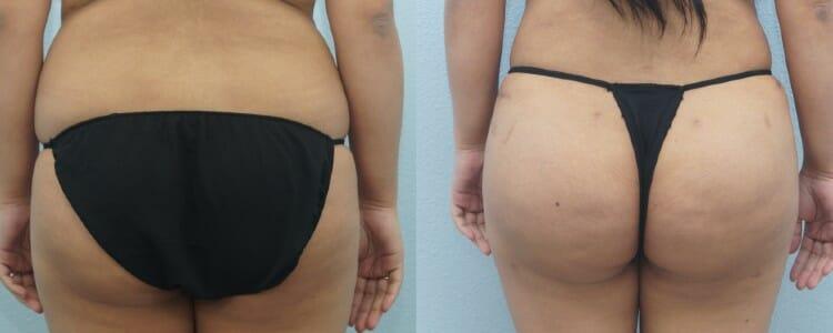 Brazilian Butt Lift Patient 4