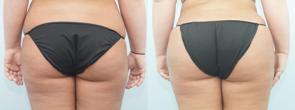 brazilian butt lift patient 2 back