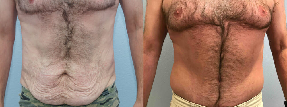 TUMMY TUCK (ABDOMINOPLASTY) PATIENT 32