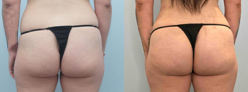 brazilian butt lift patient 5 back