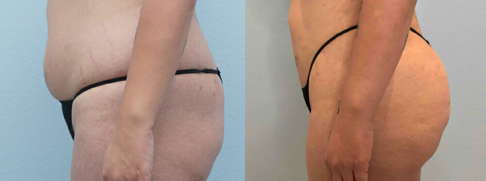 brazilian butt lift patient 1 left
