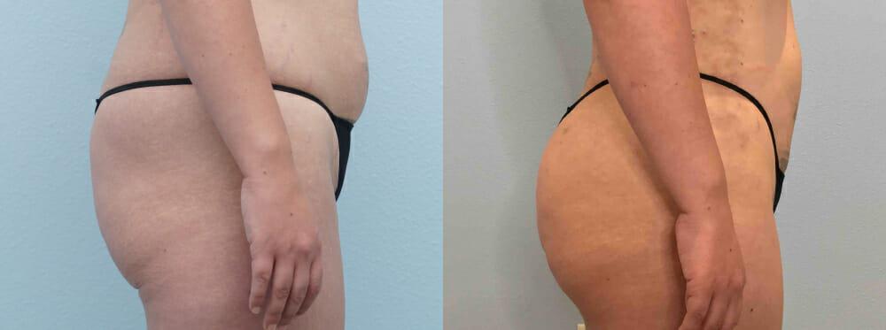 brazilian butt lift patient 1 right