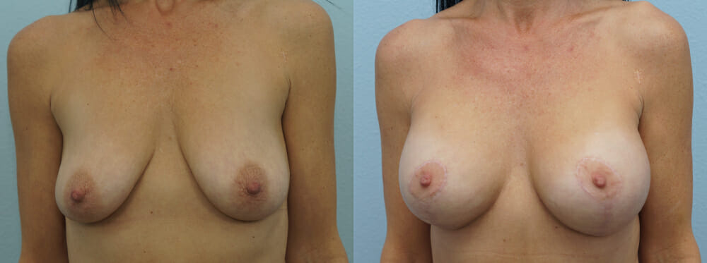 patient 30 breast lift with implants front