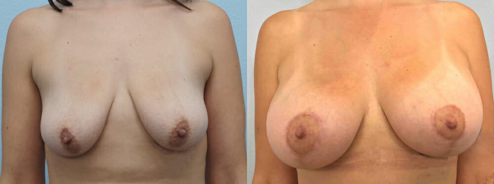 BREAST LIFT WITH IMPLANTS PATIENT 31