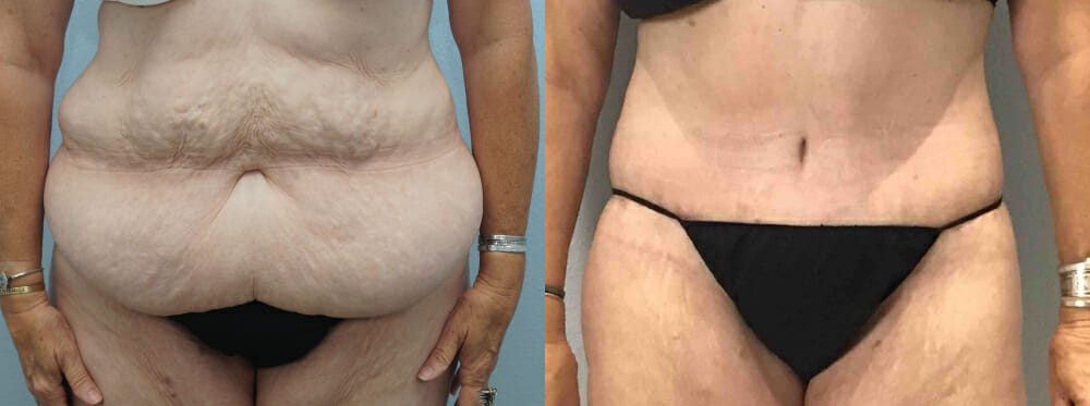 TUMMY TUCK (ABDOMINOPLASTY) PATIENT 33