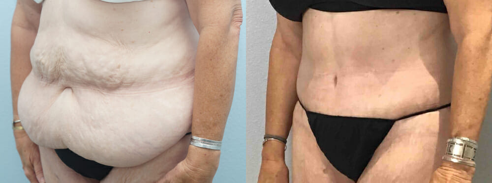 tummy tuck patient 32 left angle