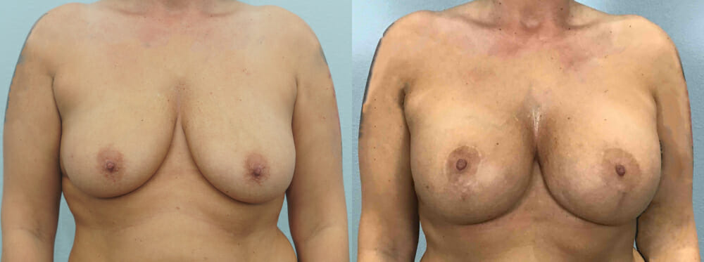 BREAST LIFT WITH IMPLANTS PATIENT 33