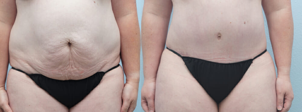 tummy tuck patient 34 front