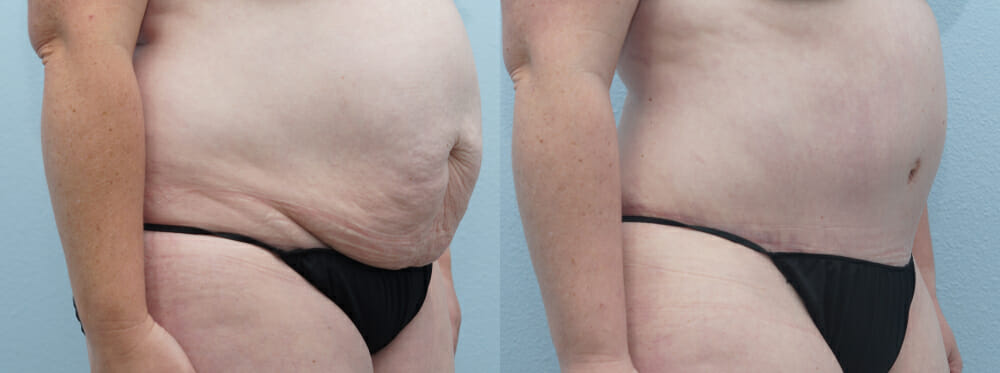 tummy tuck patient 34 right angle
