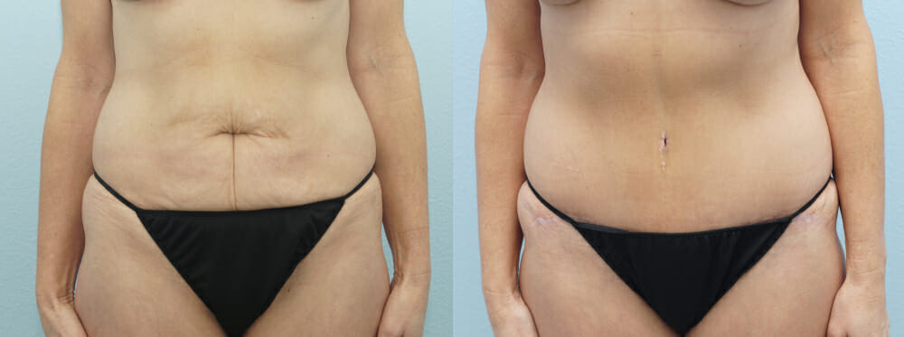 tummy tuck patient 37 front