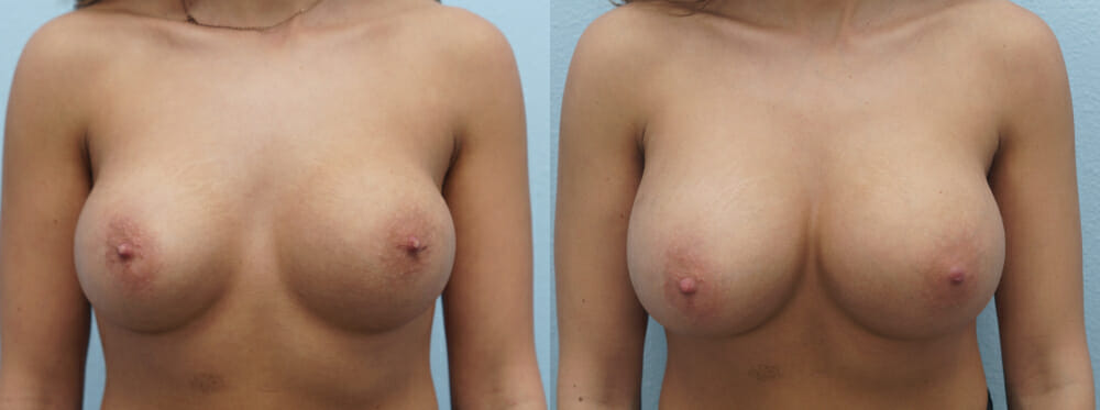 BREAST REVISION PATIENT 15