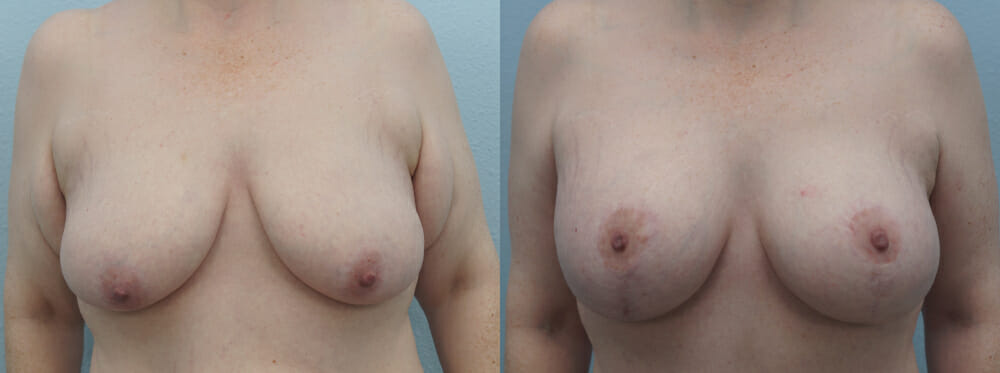 BREAST LIFT WITH IMPLANTS PATIENT 32
