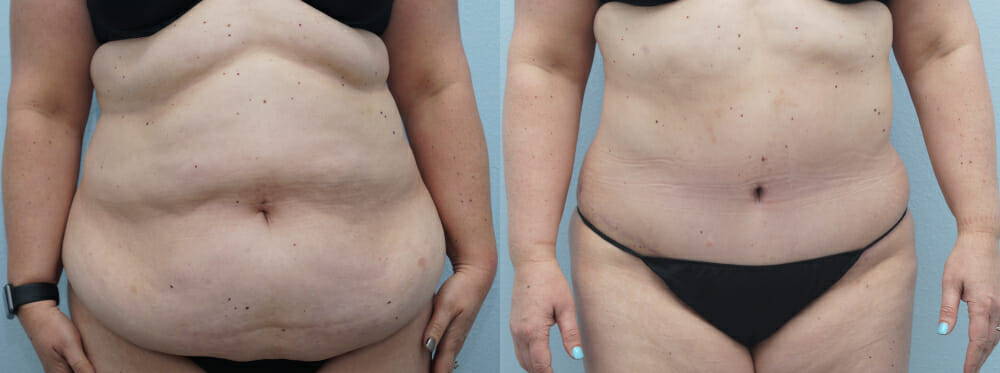 TUMMY TUCK (ABDOMINOPLASTY) PATIENT 35