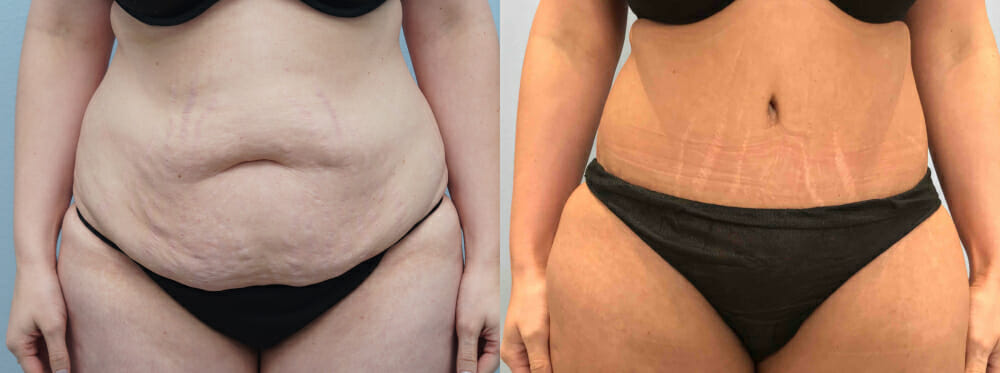 TUMMY TUCK (ABDOMINOPLASTY) PATIENT 36