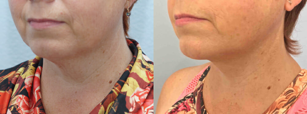 FACELIFT / NECK LIFT PATIENT 9