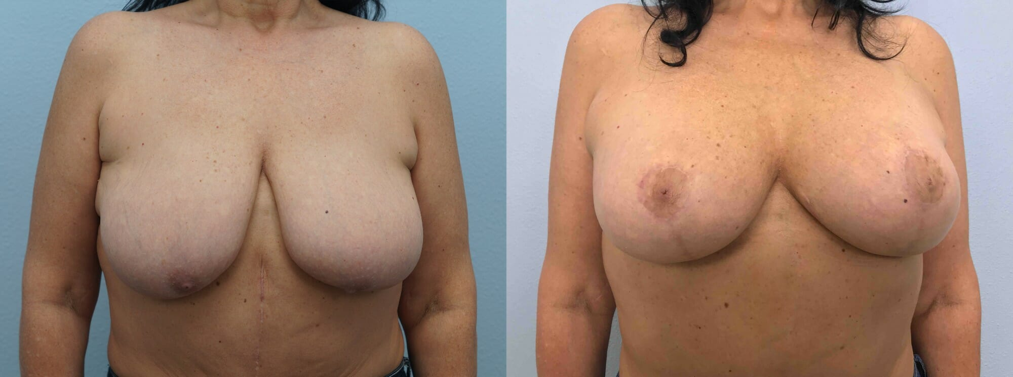 BREAST LIFT WITH IMPLANTS PATIENT 34