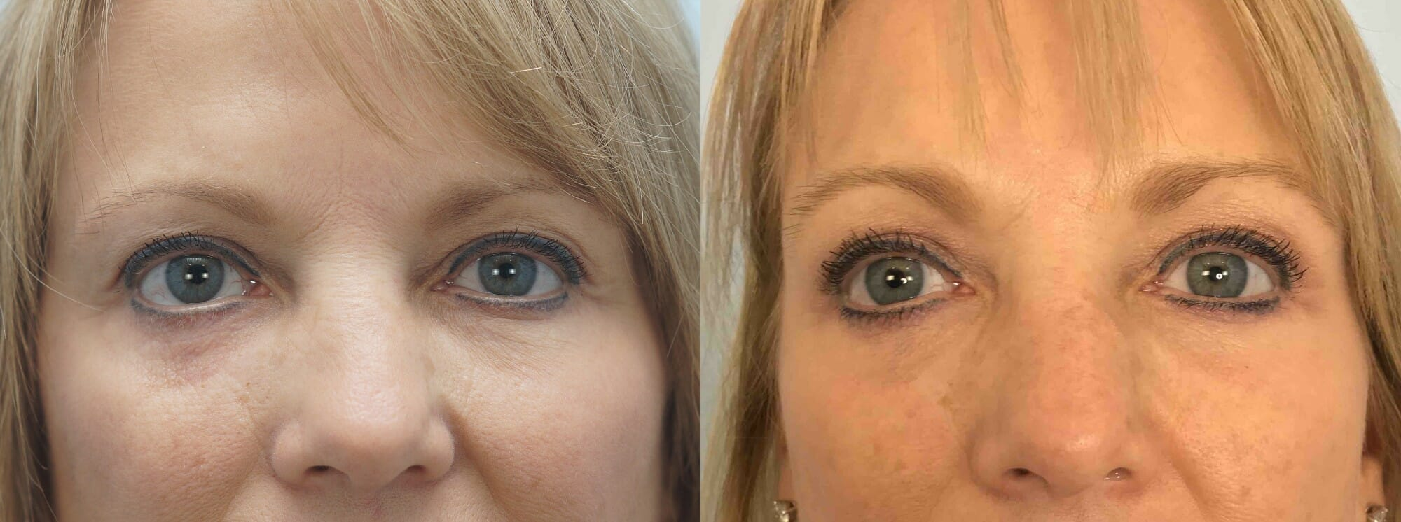 EYELID SURGERY (BLEPHAROPLASTY) PATIENT 16