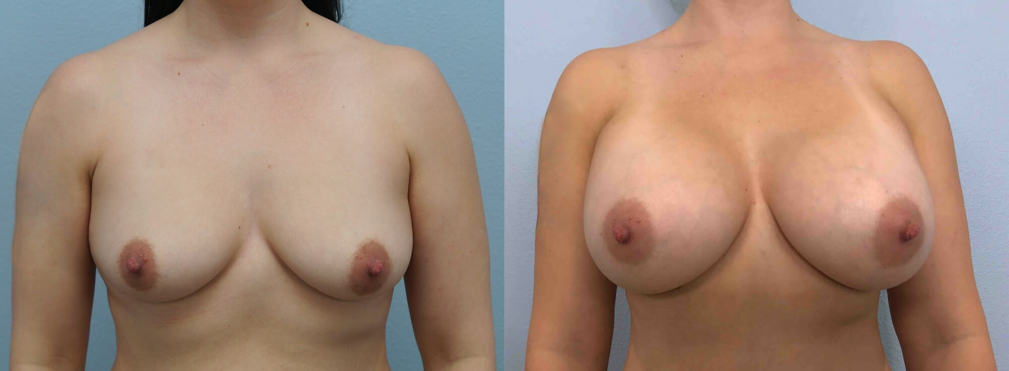 BREAST AUGMENTATION PATIENT 63