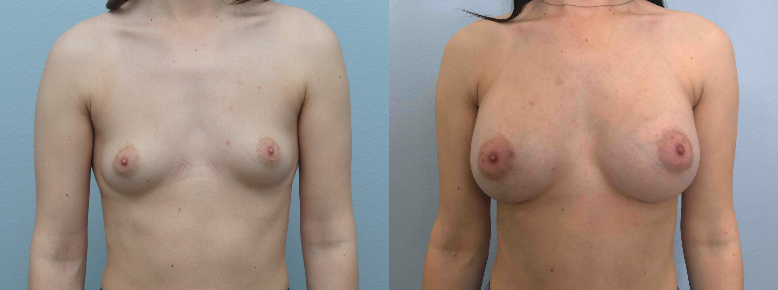 BREAST AUGMENTATION PATIENT 64