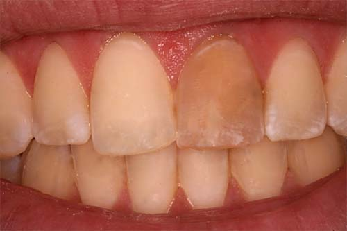 http://ScarsdaleEndo.com | internal-bleaching-before