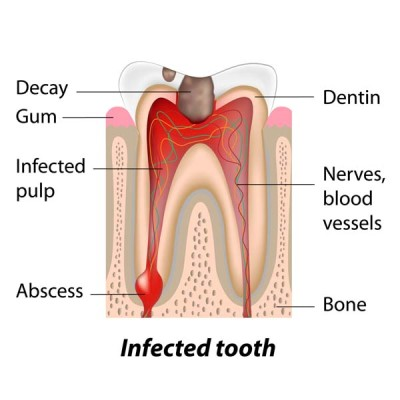 http://ScarsdaleEndo.com | Root Canal Therapy Graphic 1