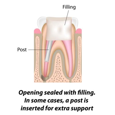 http://ScarsdaleEndo.com | Root Canal Therapy Graphic 5