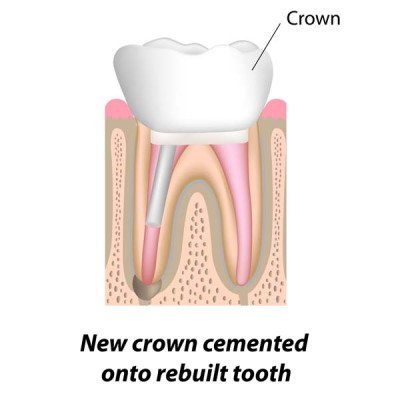 http://ScarsdaleEndo.com | Root Canal Therapy Graphic 6