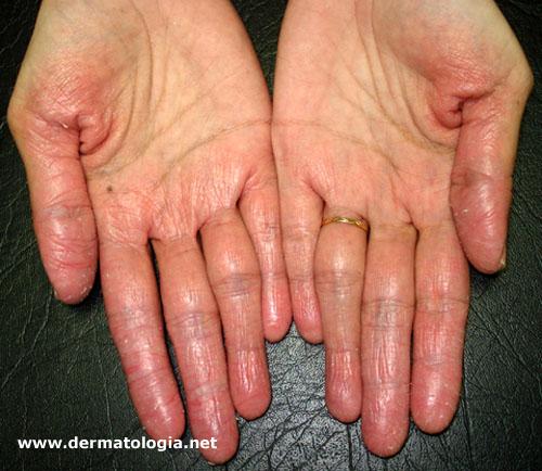 eczema por irritante primário