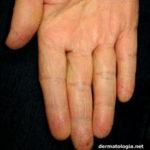eczema_maos