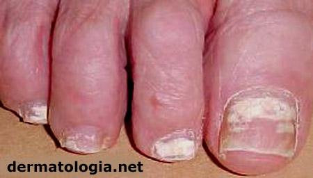 micose das unhas