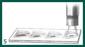 cirurgia micrográfica