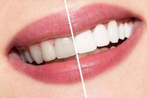 teeth comparison