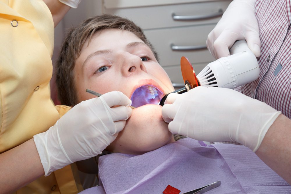 Teeth Fillings