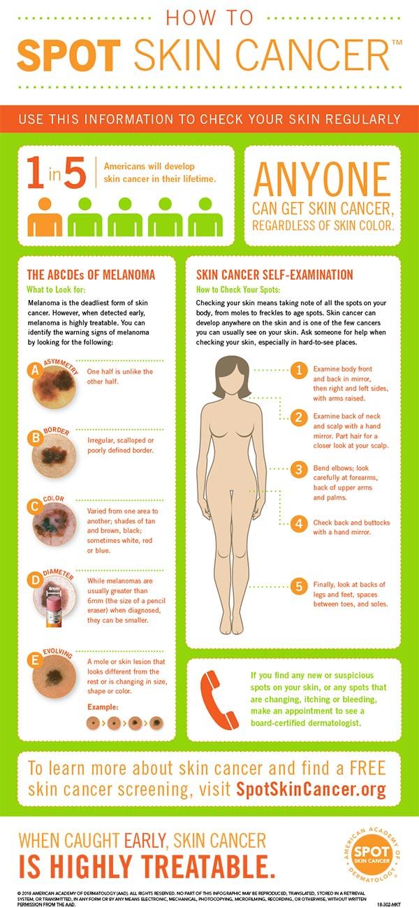 spot skin cancer chart