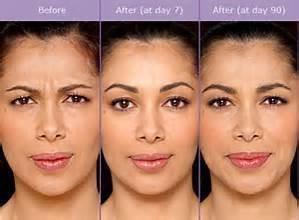 botox before and after female