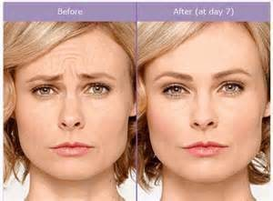botox images before and after